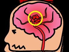 脳内出血とは? 後遺症は? 病気の症状や治療方法、予防するには?