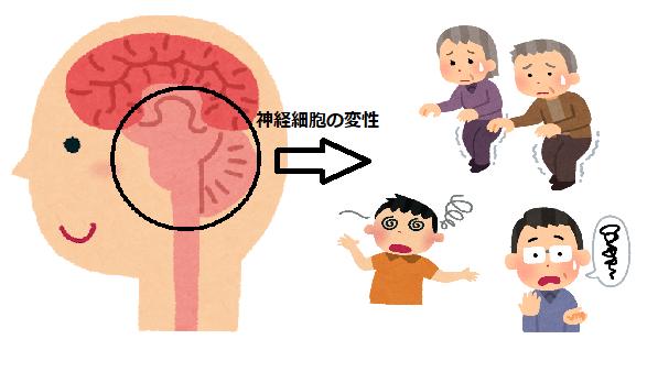 脊髄小脳変性症とは? 症状やリハビリ方法は?