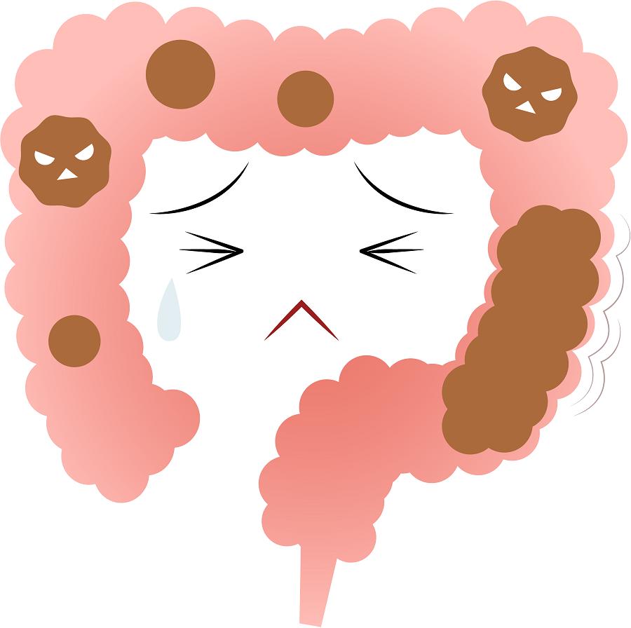 腸閉塞(イレウス)とは? 主な症状や原因、治療方法は?