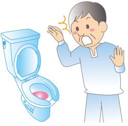膀胱がんとは? 主な症状や原因、治療方法は?